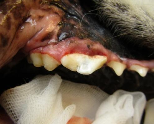 Zubní plomba po ošetření frantury korunky