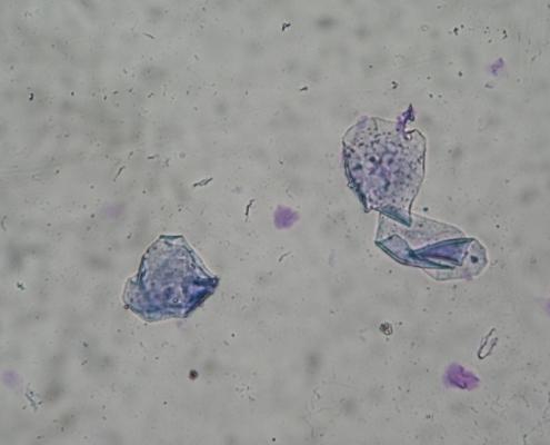 Vaginální cytologie